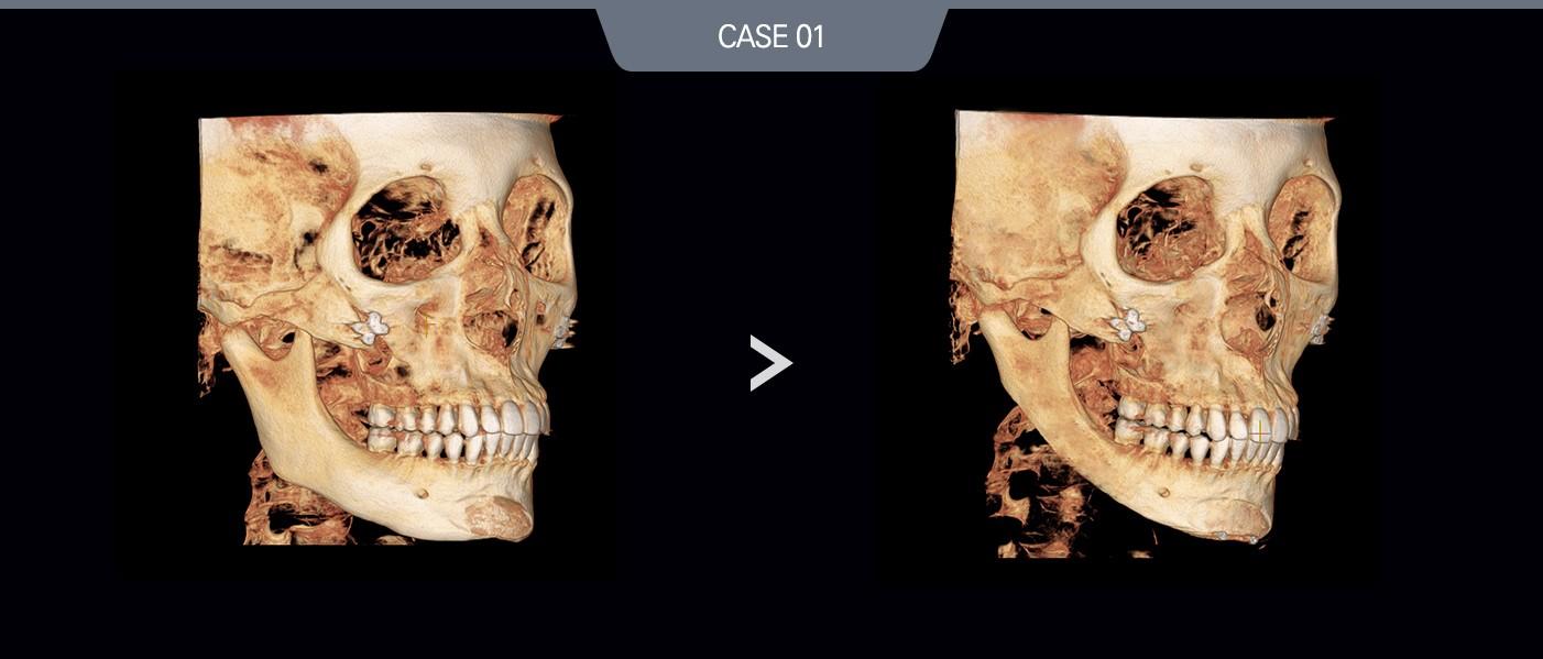 case01 측면