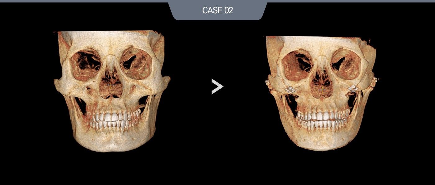 case02 정면